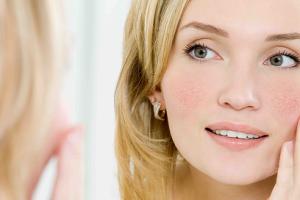 Kuperoza ili rosacea – kako je ukloniti ili spriječiti?