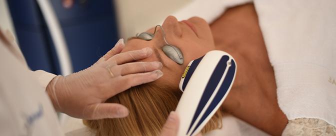 lasersko liječenje akni