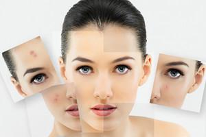 Što uzrokuje akne i kako ih izliječiti?