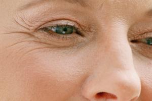Što kada nas koža na donjim i gornjim kapcima počne smetati?