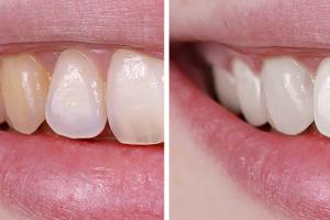 3 najučestalije pigmentacije na zubima i kako ih riješiti