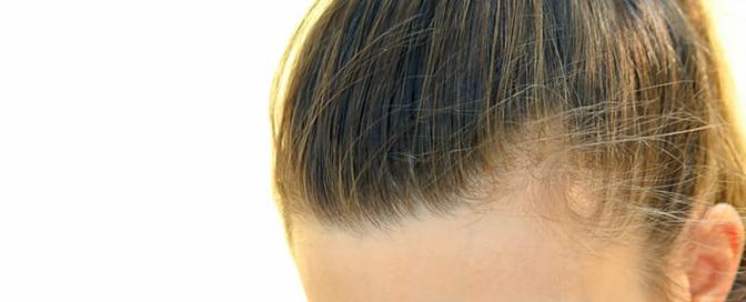 Mehanički faktori gubitka kose