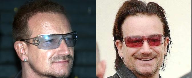 Bono Vox transplantacija kose