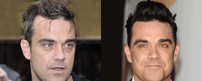 Robbie Williams transplantacija kose