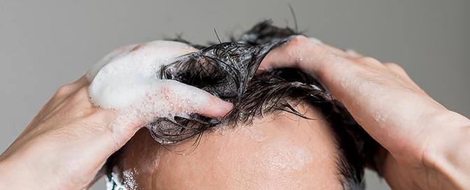 Pranje kose nakon transplantacije kose