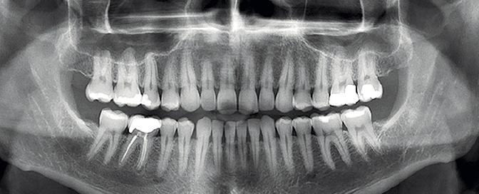 Snimka ortopana
