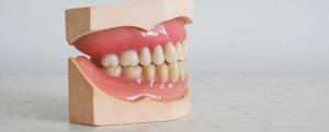 upala_zubnog_mesa_na_protezi