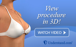3D animation breast lift
