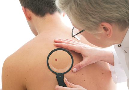 Odstranjevanje znamenj in ostalih kožnih sprememb