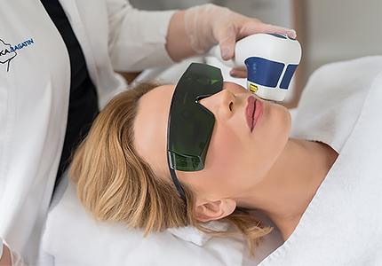 Laser Hautverjüngung