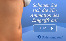 3D Animation Abdominoplastik