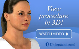 3D animation face lift
