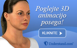 3D animacija face lifting