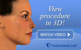 3D animation nose surgery (rhinoplasty)