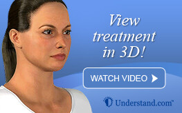 3D animation laser removal of skin redness and pigmented lesions