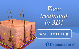 3D animation laser hair removal