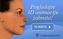 3D animacija lifting obrva