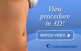 3D animation liposuction and VASER