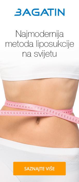 VASERlipo
