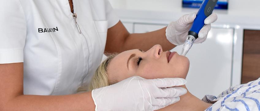 Skin Pen tretman mikroiglicama