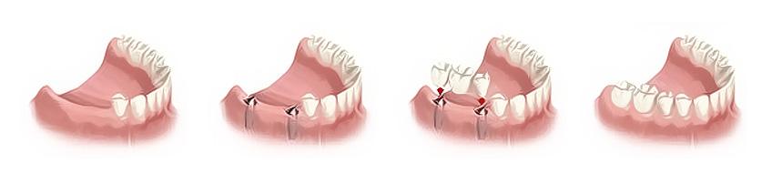 A small bridge on implants