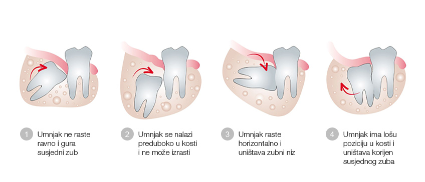Alveotomija