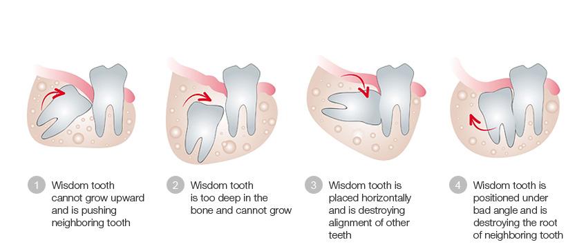 Alveotomy