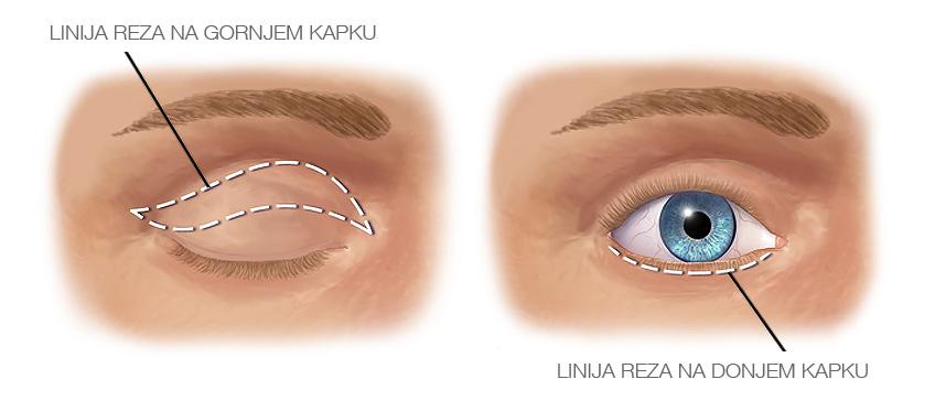 Podizanje kapaka (blefaroplastika)