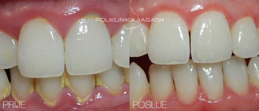 Čišćenje zubnog kamenca