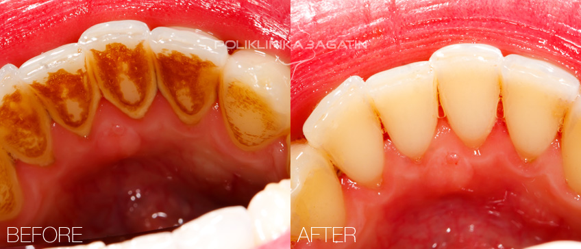 Dental calculus removal and sandblasting