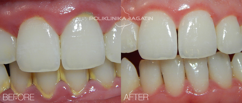 Natural Dental Tartar Removal