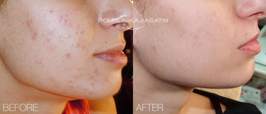 bouton d'acné sur le visage signification jeunesse