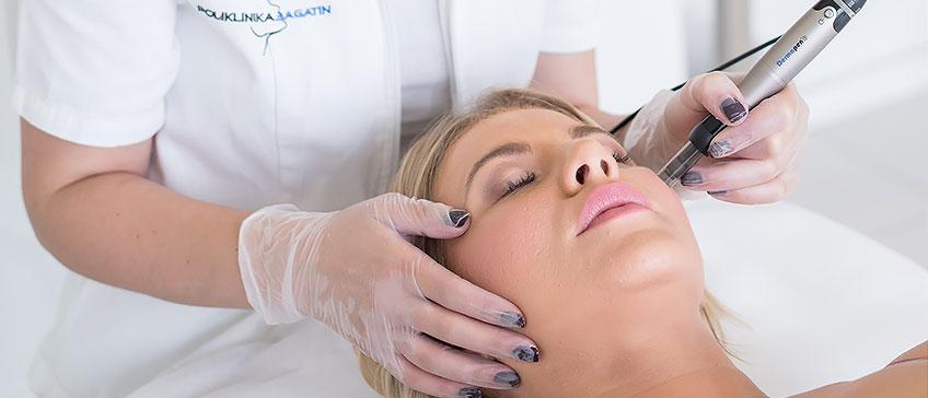 Dermapen tretman mikroiglicama