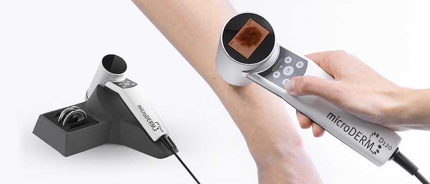 Digital dermatoscopy