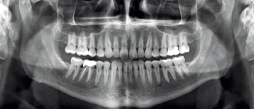Dijagnostika s ortopanom 3D