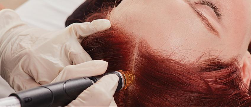 HydraFacial Keravive tretman vlasišta