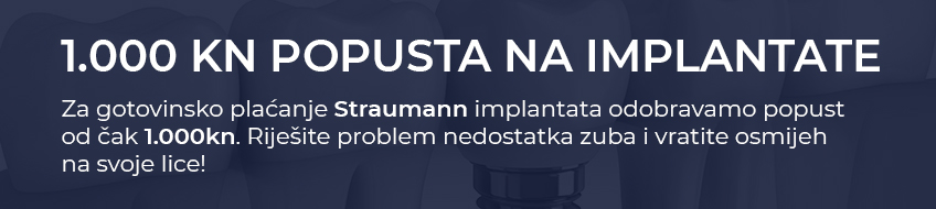 Straumann implantati