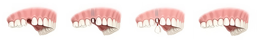 Jedan zub na implantatu