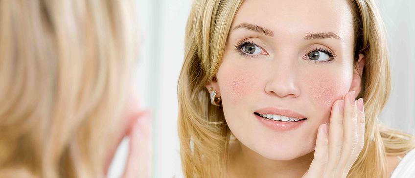 Kandidati za tretman laserskog uklanjanja crvenila lica