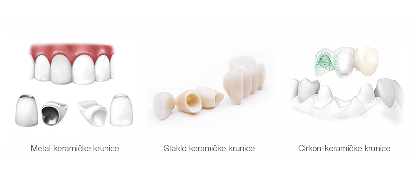 Keramicke krunice - razlicite vrste