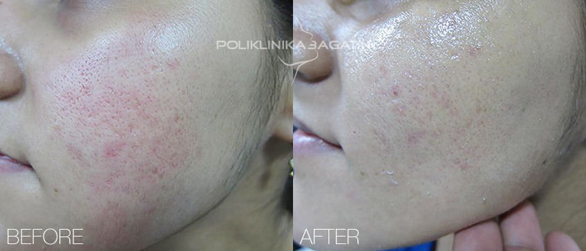 Laser removal of stretch marks and moles
