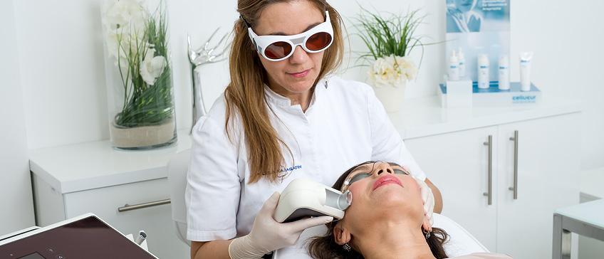 Lasersko odstranjevanje rdečice in kapilar na obrazu