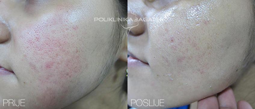 Lasersko uklanjanje ožiljaka i strija