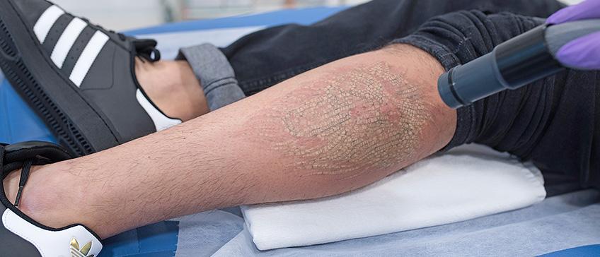 Lasersko uklanjanje tetovaža