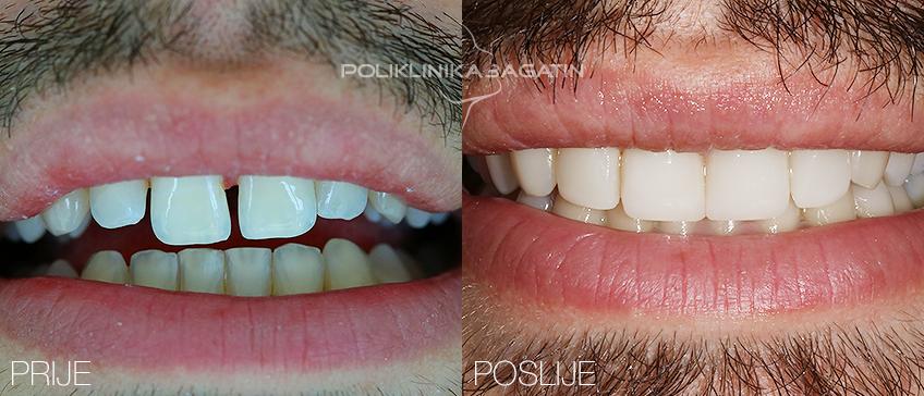 Ljuskice - izgled zubi nakon odrađenog zahvata