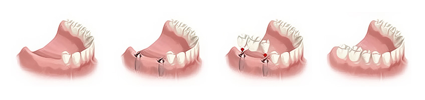 Art der Zahnaufwertungen