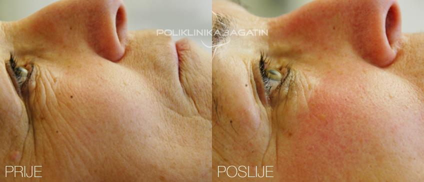 Med Visage pomaže kod popravka tonusa i elastičnosti lica