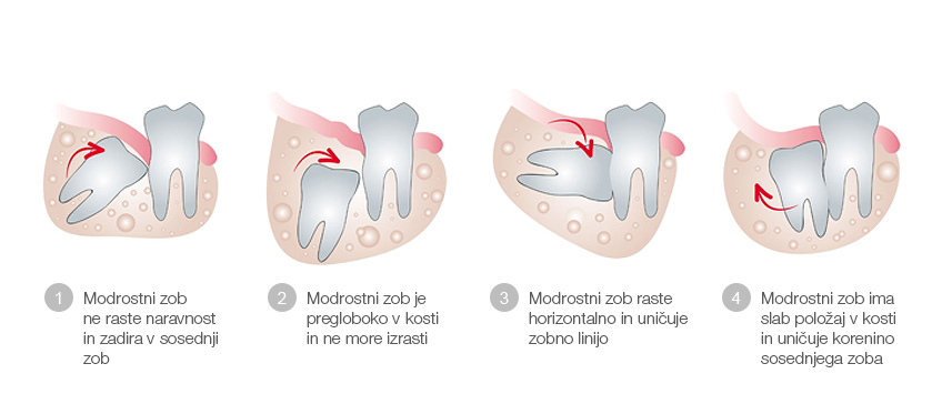Oralna kirurgija