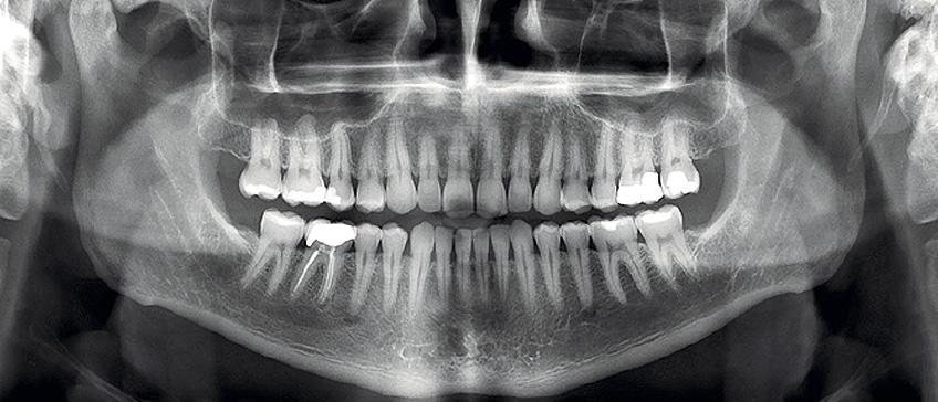 Ortopan i 3D dijagnostika