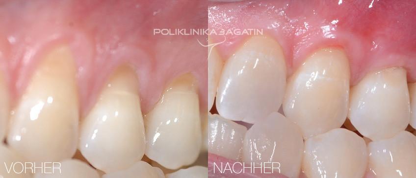 Parodontologie und Parodontaldiagnostik